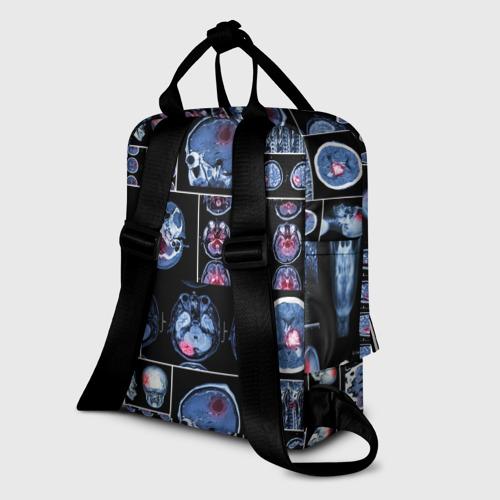 Женский рюкзак 3D неврология Фото 01