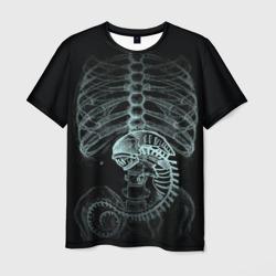 Чужой на Рентгене